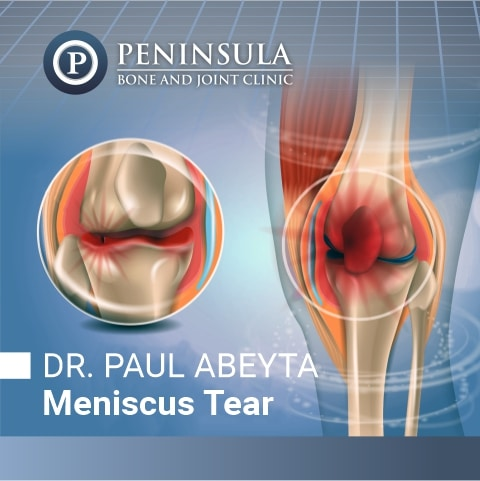 Meniscus Tear Injuries Treated by Dr. Paul Abeyta