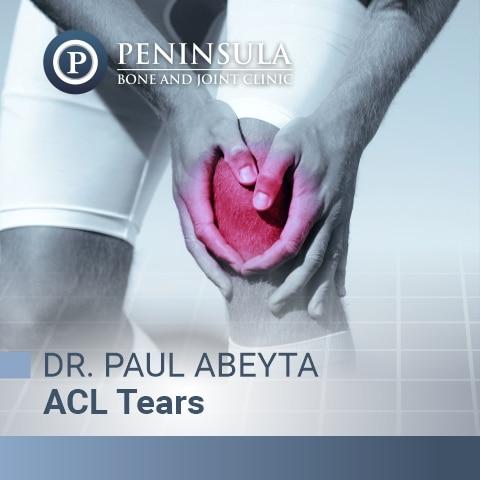 Anterior Cruciate Ligament Tear Treated by Dr. Paul Abeyta