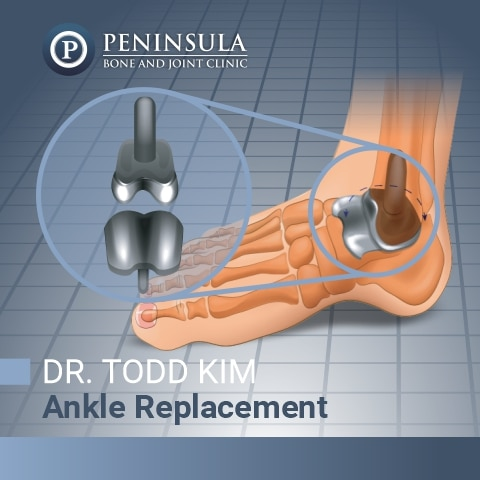 Total Ankle Replacement by Dr. Kim
